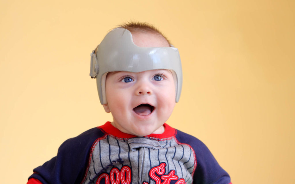 Which style of cranial remolding helmet is right for my baby?