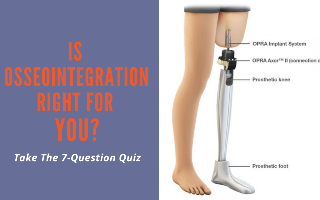 Are you a good candidate for Osseointegration?